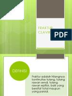 FRAKTUR CLAVIKULA.pptx