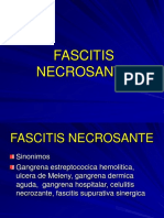 fascitis