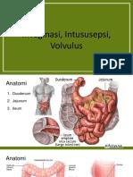 TL Intususepsi