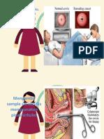 Memeriksa serviks metode gambar.pptx