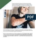 Autoimmune Article