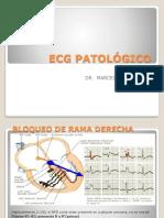 2. Ecg Patológico