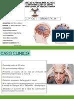 Diapos de Hidrocefalia