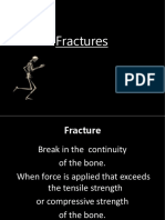 36913304-1-Fractures-Ppt.ppt
