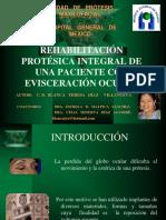 rehabilitacion-protesica-integral-de-una-paciente-con-evisceracion-ocular