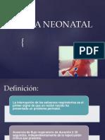 Apnea Neonatal