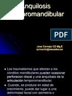 Anquilosis temporomandibular.ppt
