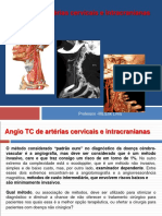Protocolos de Angio TC Cervical e Intracraniano