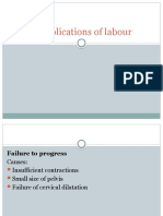 Complications of Labour