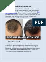 Best Hair Transplant in India.