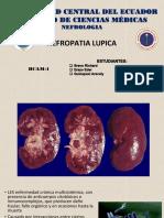 Expo nefropatia lupica