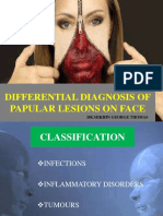 papulesface-1-160512142331
