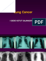 18 Kuliah Lung Cancer