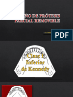10. DISEÑO DE PPR.pptx