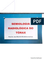 Semiologia Radiologica Do Tórax