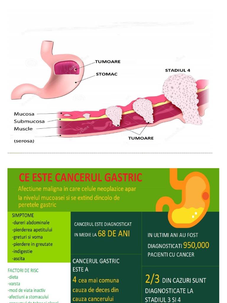 cancer neoplasia maligna hpv virus neck cancer
