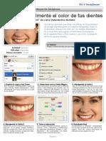 Blanqueo de dientes.pdf