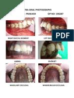 Prakash Intra Oral Photos