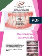 Maloclusión-transversal GRUPO A