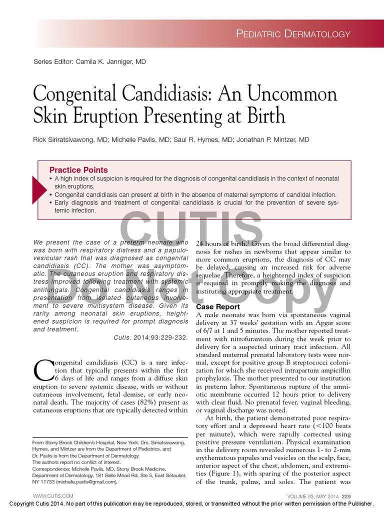 Cutaneous Candidiasis Treatment & Management: Medical Care