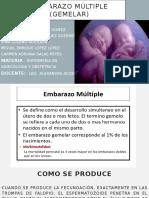 Embarazo múltiple (gemelar)