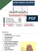 Interpretacion ECG