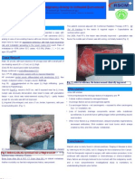 Marjolin Ulcer POSTER (RSCM)