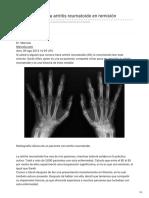 De Cómo Poner La Artritis Reumatoide en Remisión
