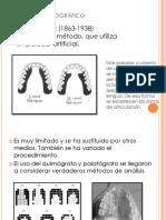 Método Palatográfico