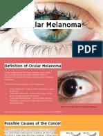 ocular melanoma - lex and tommy