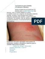 28 Tratamentos Caseiros Para Celulite Infecciosa e