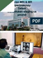 MR spectroscopy ca prostat
