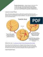 Cara Mengatasi Kanker Payudara Benjolan Besar