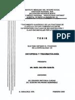 FRACTURA DE CLAVICULA PLACA VS CLAVO ENDOMEDULAR.pdf