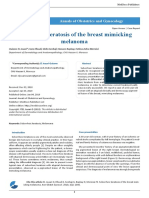 Seborrheic Keratosis of the Breast Mimicking Melanoma