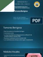Tumores Benignos Laringeos