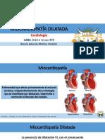 Miocardiopatía Dilatada