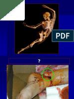 Anatomi Dan Fisiologi Skeletal System