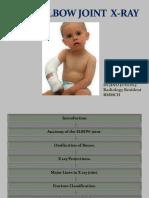 elbowjointjino-141121231122-conversion-gate02.pdf