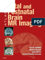 Atlas of Fetal and Infant Brain MR_nodrm.pdf