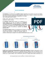 Trombosis Informacion General ES