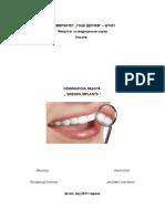 Sweden implants.doc
