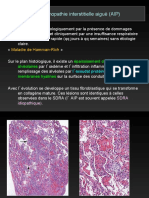 DU-thorax-Pneumopathies-infiltrantes-02-HRM-2011FILEminimizer.pdf