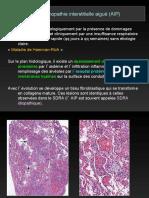 DU-thorax-Pneumopathies-infiltrantes-02-HRM-2011FILEminimizer.pdf