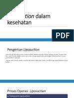 Liposuction Dalam Kesehatan
