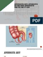 Slide Perbedaan Appendicitis Akut, Appendicitis Infiltrat Dan Abses