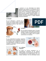 La neumonía, ASMA LARINGUITIS, DIFTERIA.docx