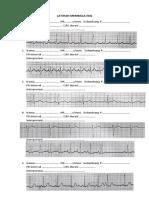 LATIHAN MEMBACA EKG.docx