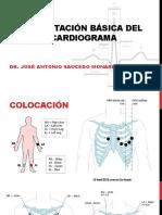 Interpretación Básica del Electrocardiograma