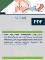 Stroke (FATMA).pptx
